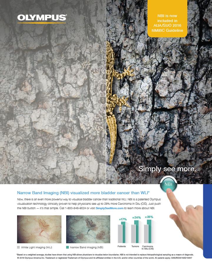 Simply See More - Narrow Band Imaging (NBI) for Urology